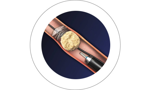 cirugia14-drorrico-urologoenleon