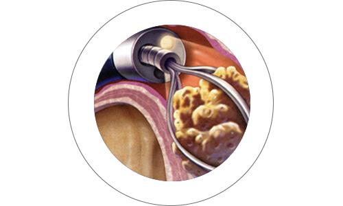 cirugia15-drorrico-urologoenleon