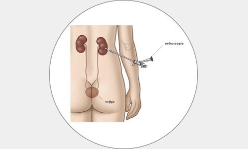 cirugia16-drorrico-urologoenleon