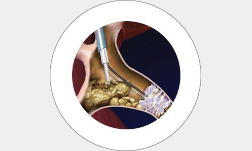 cirugia18-drorrico-urologoenleon