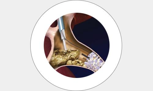 cirugia19-drorrico-urologoenleon