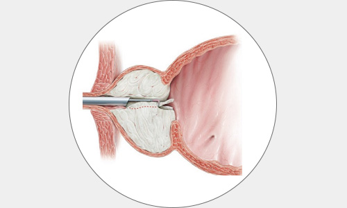 cirugia4-drorrico-urologoenleon