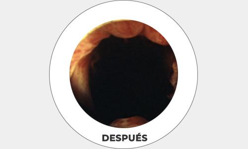cirugia6-drorrico-urologoenleon
