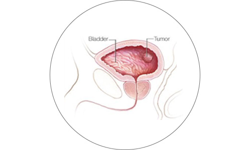 cirugia7-drorrico-urologoenleon