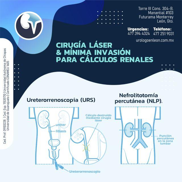 Cirugía Láser y Mínima Invasión para cálculos renales.