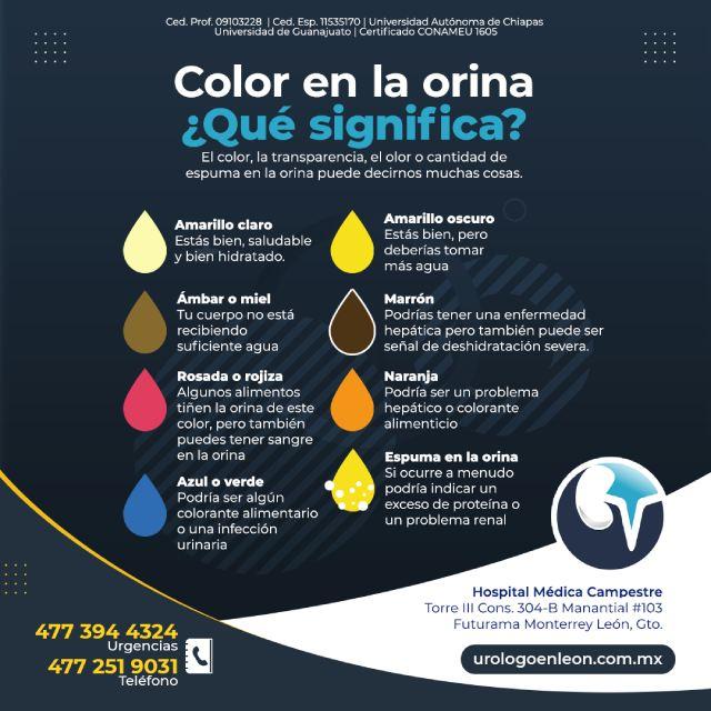 Color en la orina ¿Qué significa?