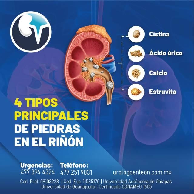 4 tipos principales de piedras en los riñones